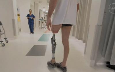 prosthetic surgery